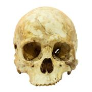 Human skull fracture (mongoloid,asian) on isolated background Stock Photos