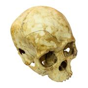 Stock Photo of human skull fracture(top side,apex)(mongoloid,asian) on isolated
