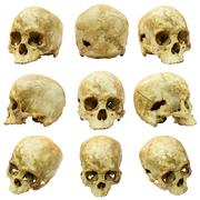 Collection of human skull (mongoloid) and broken skull Stock Photos