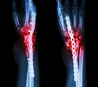 fracture wrist and chronic infection. it was operated and intern - stock photo