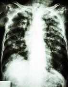 Pulmonary tuberculosis Kuvituskuvat