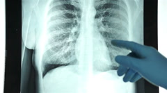 Health Care Doctor Pointing at a Chest X-ray Stock Footage