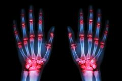 Multiple joint arthritis both hands ( gout , rheumatoid ) on black background Stock Photos