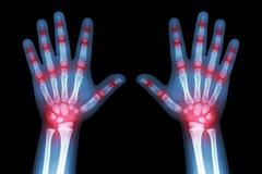 rheumatoid arthritis ( x-ray both child hands and multiple joint arthritis ) - stock photo
