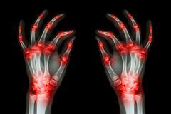 multiple joint arthritis both adult hands ( gout , rheumatoid ) on black back - stock photo
