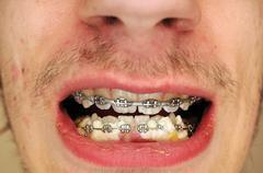 food stuck in between braces - stock photo