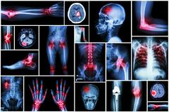 Collection x-ray multiple disease (arthritis,stroke,brain tumor,gout,rheumato Stock Photos