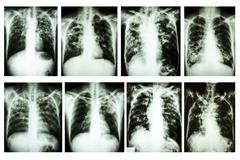 """Collection of chest x-ray """"pulmonary tuberculosis"""" Kuvituskuvat"""