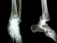 film x-ray ankle ap/lateral : show fracture distal tibia and fibula (leg's bo - stock photo