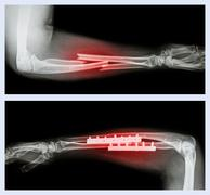 Upper image : fracture ulnar and radius (forearm bone) , lower image : it was Stock Photos