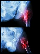 fracture head of femur(thigh bone) (intertrochanteric fracture)  (2 position) - stock photo