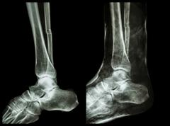 Left image : fracture shaft of fibula (calf bone)  ,  right image : it was sp Stock Illustration