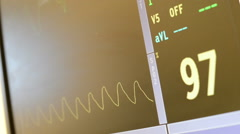 Heart rate monitors in surgery room and emergency room showing heartbeat Stock Footage