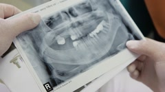 picture of the jaw in the hands of the doctor of periodontal - stock footage