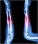 fracture shaft of ulnar bone ( forearm bone )  :  ( front and side view ) - stock illustration