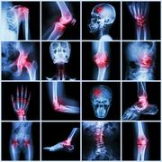 Collection human joint and arthritis and stroke ( skull head neck shoulder ch Stock Photos