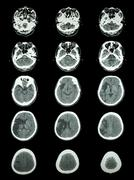 Ct scan (computed tomography) of brain show cerebral infarction at right temp Kuvituskuvat