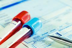 Biochemistry blood tests Stock Photos