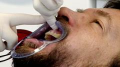 Extreme closeup of man starting teeth whitening Stock Footage