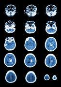 Hemorrhagic stroke .  ct scan (computed tomography) of brain ( c Kuvituskuvat