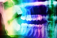 Dental X-Ray Of Human Teeth - stock illustration