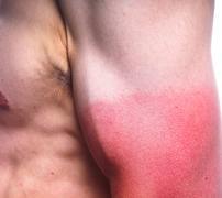 Sunburn male biceps Stock Photos