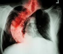 Scoliosis ( crooked spine ) X-ray chest of old people with  croo Stock Photos