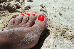 Sunburnt female leg - stock photo