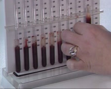 Health checkup: collection of canula blood (1980s) Stock Footage