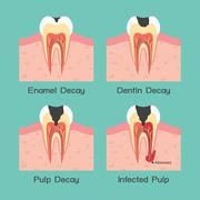 Tooth decay Stock Illustration