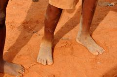 Dirty and bare child's feet on gravel. Poverty concept Stock Photos