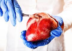 cardiac surgeon, abstract - stock photo