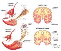 Alzheimer's disease Stock Illustration