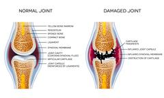 Damaged joint and healthy joint Stock Illustration