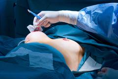 Breast augmentation - stock photo