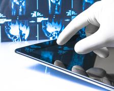 Hand in medical blue glove touching modern digital tablet on x-ray images bac Stock Photos