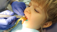 Kid during procedure of teeth treatment at dentist clinic office. Arkistovideo