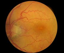 Medical Fundus photo of retinal pathology, hemmorhages, vein occlusion, macul - stock photo