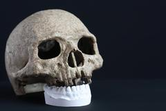 Skull And Jaw - stock photo