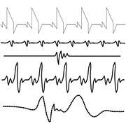 Stock Illustration of electrocardiogram