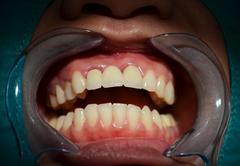 All ceramic bridge of anterior upper teeth Stock Photos