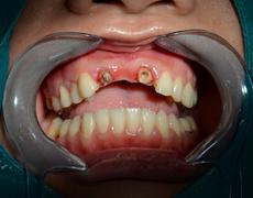 After remove all ceramic bridge of anterior upper teeth Stock Photos