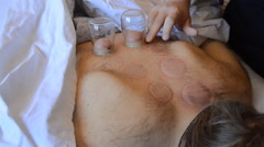 Cupping Therapy Is Now Over Stock Footage
