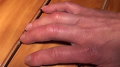 Hand and swallen fingers affected by Reynauds syndrome 3 Stock Footage