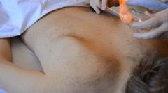 Oriental Traditional Healing Procedure - stock footage