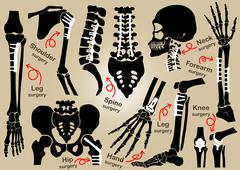Collection of Orthopedic surgery - stock illustration