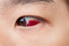 Eye injury or infected for healthy concept, macro closeup - stock photo