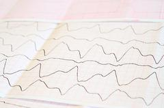 ECG tape with paroxysmal ventricular tachycardia - stock photo