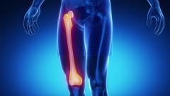 FEMUR bone skeleton x-ray scan in blue Stock Footage