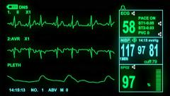 4k ECG monitor screen, hd, 1080p high definition, seamless loop Stock Footage